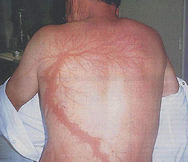 Lichtenberg Figürleri – Elektrik Ağacı – Yıldırım Yaraları