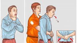 Heimlich Manevrası  Nedir? Nasıl Yapılır?