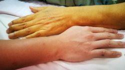 Sarılık nedir? Türleri nelerdir  , Tedavisi  nasıldır?
