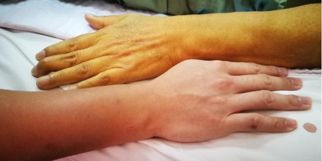 Sarılık  nedir? Türleri nelerdir ve  tedavisi nasıldır?