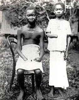Belçikalılar tarafından elleri kesilmiş Kongolu çocuklar