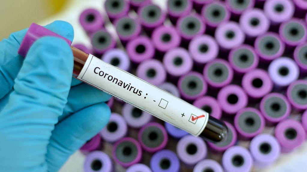 Koronavirüsü Ağır Atlatanlar 10 Yıl Yaşlanıyor ve  IQ Seviyesi Düşüyor
