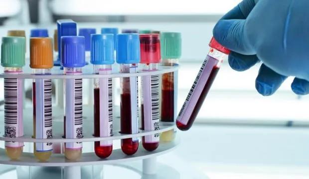 Tam Kan Sayımı Testi