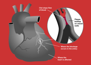 Bir  kalp krizinde koroner arterlerin beslenememesi durumu.