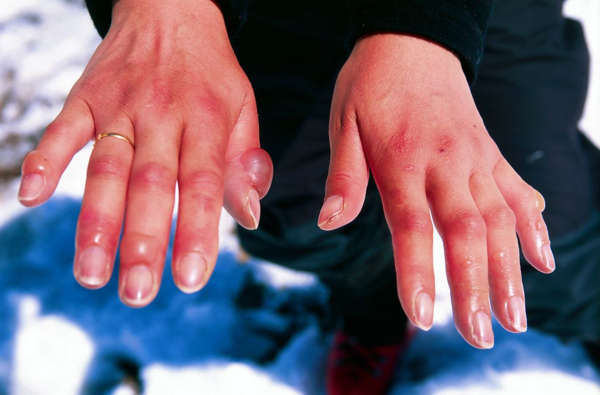 Soğuk ısırması nedeniyle ellerde oluşan ödem