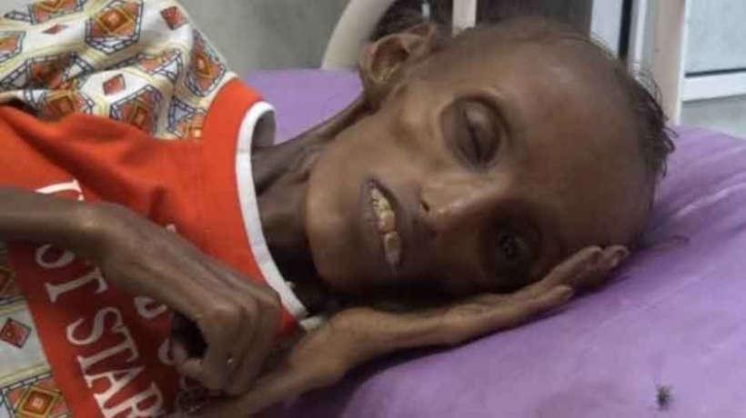 Yemen'de Korkunç Bir Durum Var: 370 Bin Çocuk Açlık İçinde